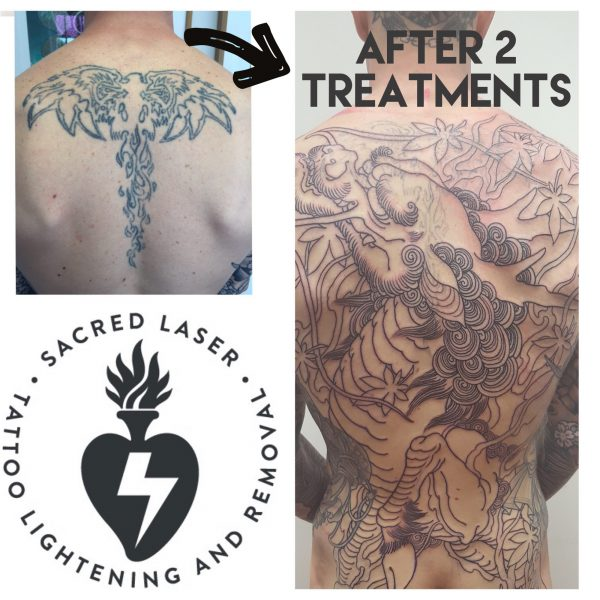 Cover up your old Tattoo by clearing the way with Tattoo Removal/Lightening .