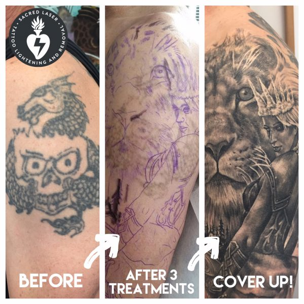 Cover up after Tattoo Removal