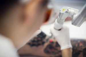 Laser Tattoo Removal Equipment Upgrade in Auckland is Better for Customers.